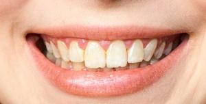 Fixed Bridges | Nataupsky Family Dentistry