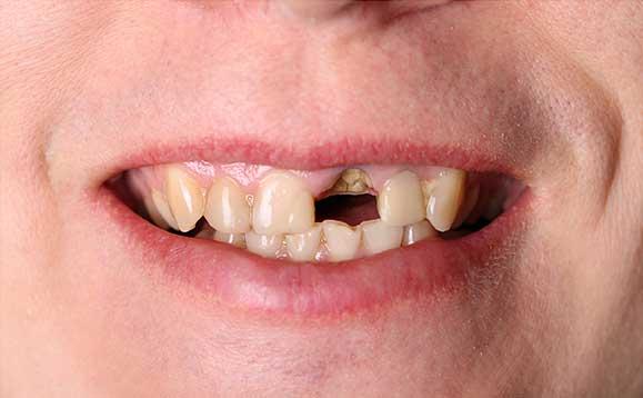 Broken Tooth | Nataupsky Family Dentistry