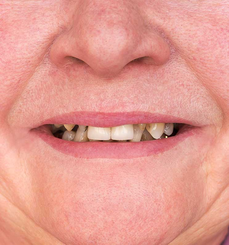 Elderly Teeth | Nataupsky Family Dentistry