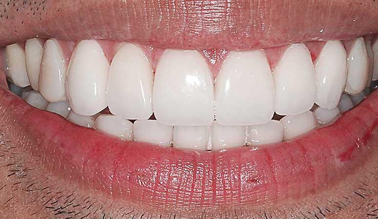 Masuline | Nataupsky Family Dentistry