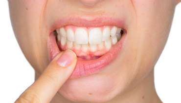 Non-Surgical Gum Treatment